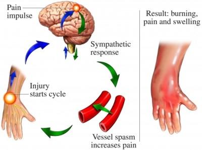 Chronic Regional Pain Syndrome | St  Mark's Hospital